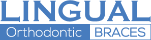 Lingual Orthodontic Braces Ireland